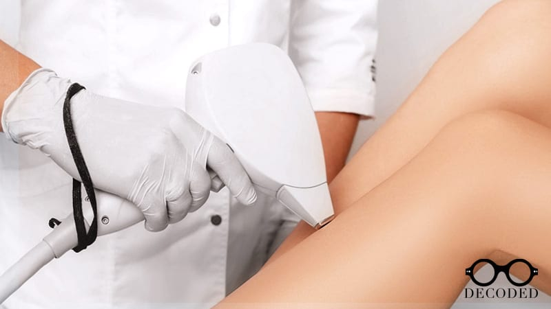 What They Don't Tell You About Laser Hair Removal
